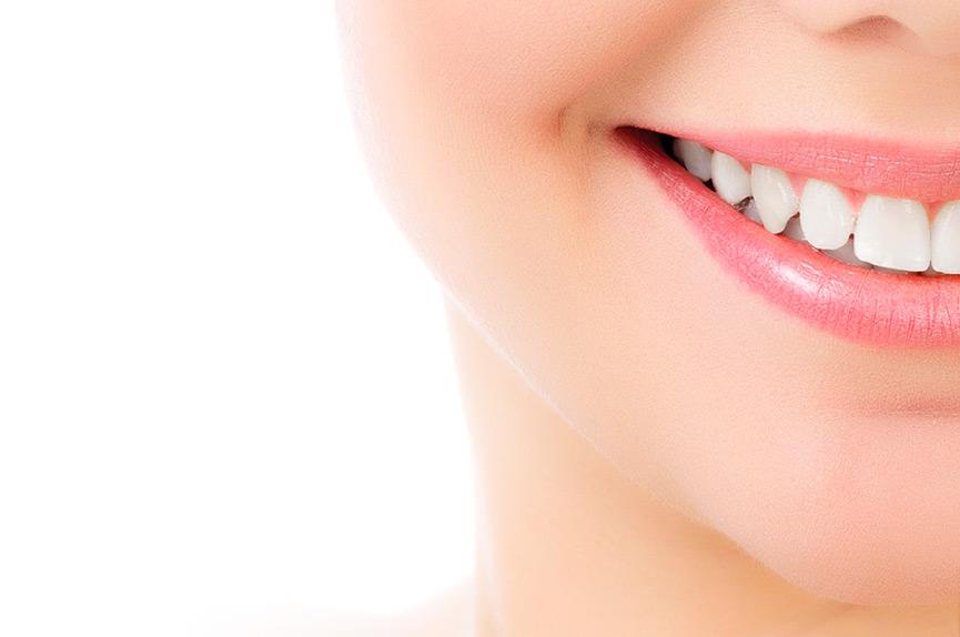 Carillas de porcelana para mejorar la estética dental