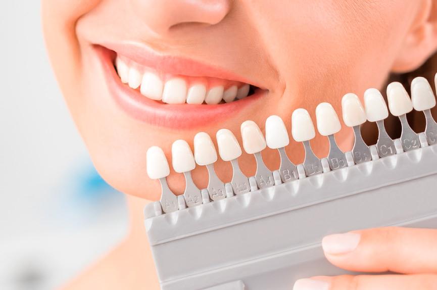 Tratamientos dentales en Elche. Dental Roca Clínica dental en Elche