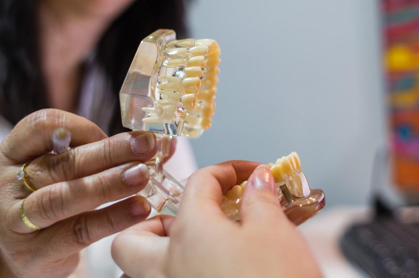 En Dental Roca realizamos implantes con coronas dentales