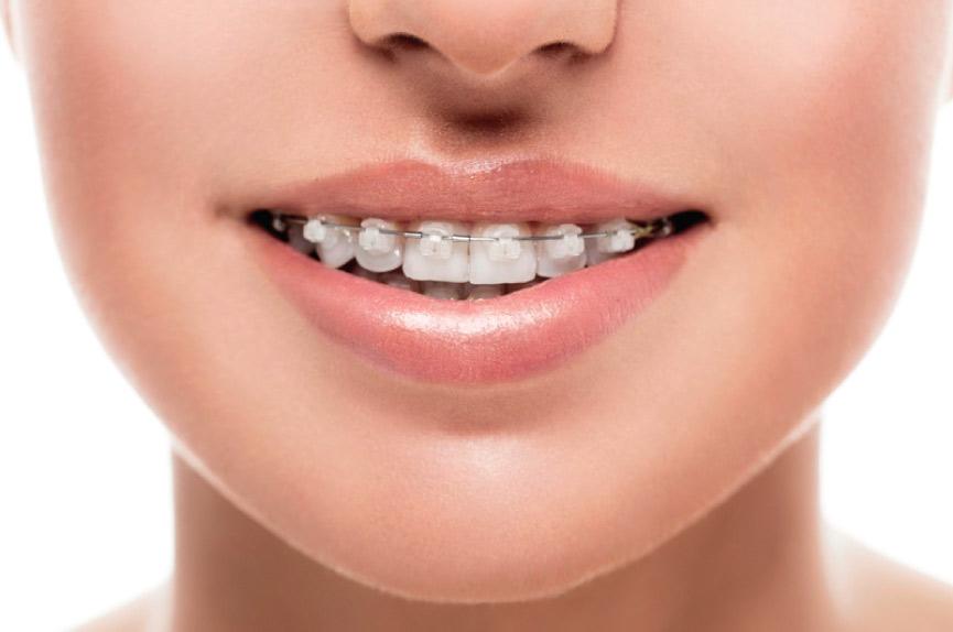 Ortodoncia en Elche - Clinica dental Dental Roca
