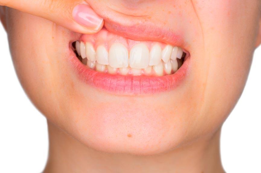 Periodoncia en Elche. Dental Roca, tu dentista en Elche