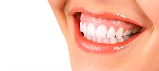 Cuando sonrío enseño mucho la encía. ¿Qué puedo hacer? - Dental Roca
