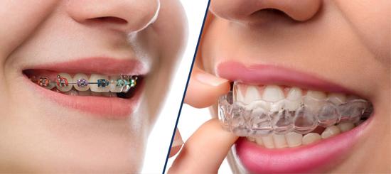 ¿Brackets o Invisalign? Esa es la cuestión- Dental Roca