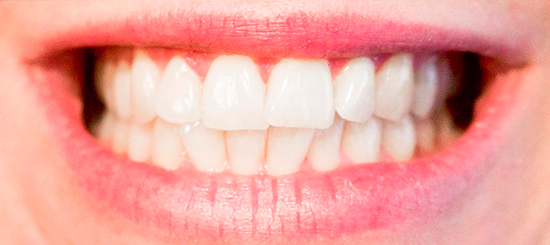 Maloclusión, un problema que se puede tratar a tiempo - Dental Roca