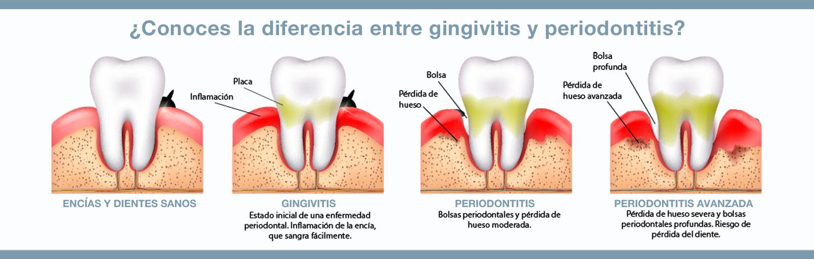 Cuatro claves para conocer la diferencia entre giginvitis y periodontitis