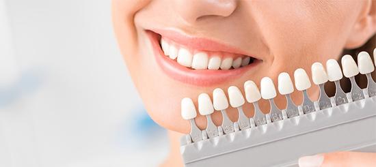 ¿Has pensado en ponerte carillas dentales? Razones para ponerte carillas