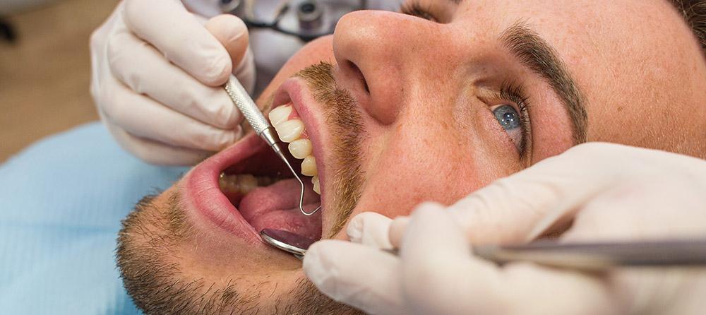¿Están las infecciones en la boca relacionadas con el Alzheimer?