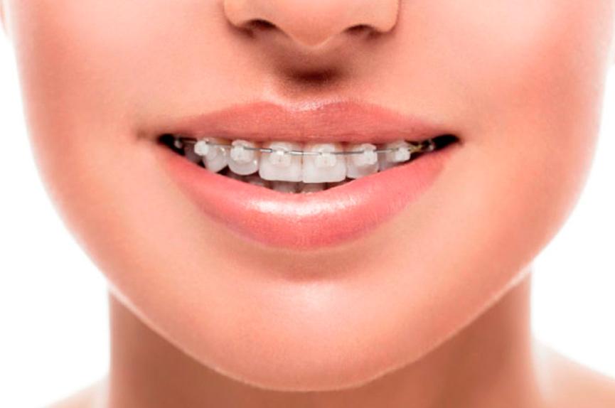 Tratamientos de ortodoncia para corregir problemas bucodentales y mejorar tu estética dental