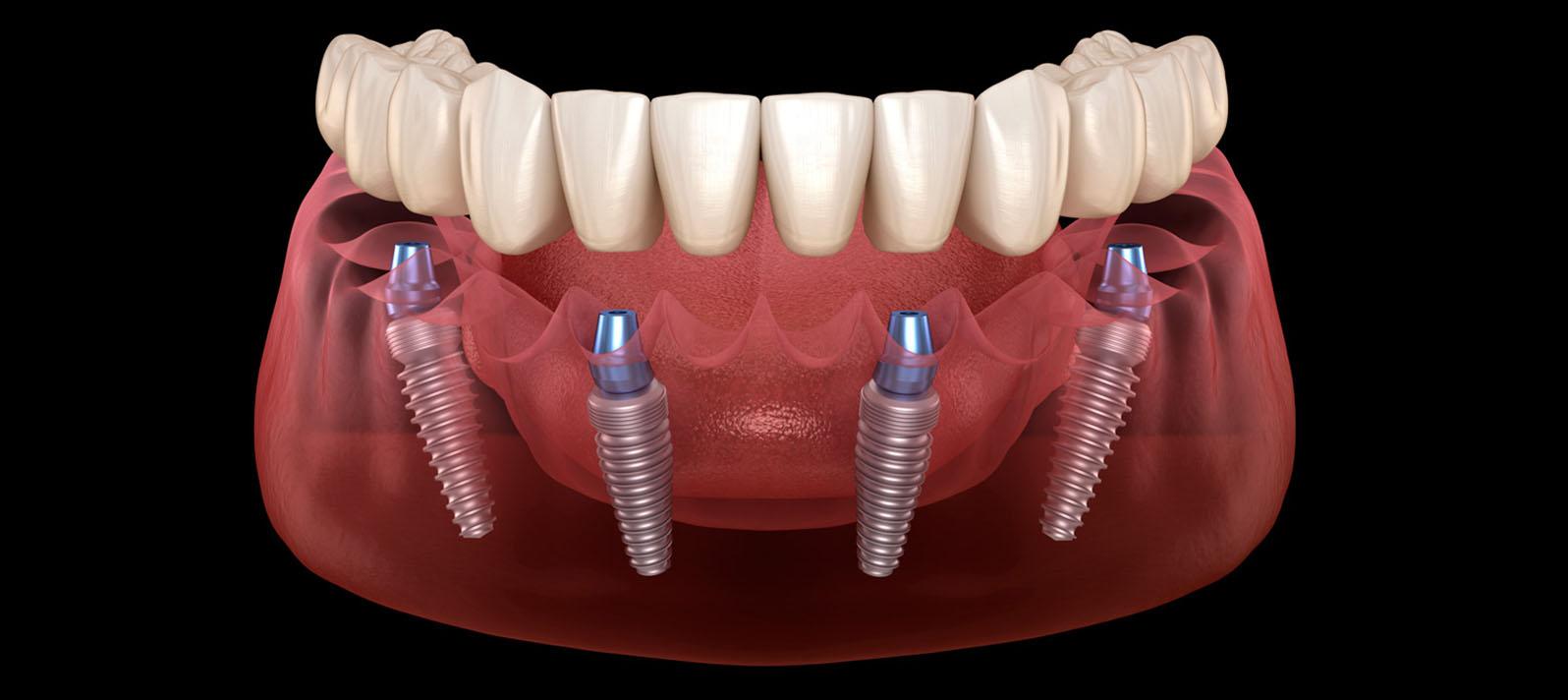 Dental Roca ya cuenta con tecnología X-GUIDE para implantología