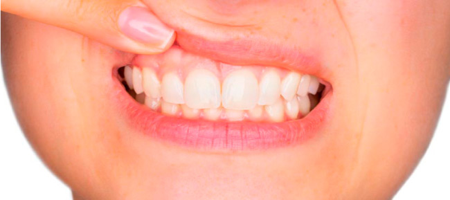 El sangrado de encías es una causa de enfermedad periodontal