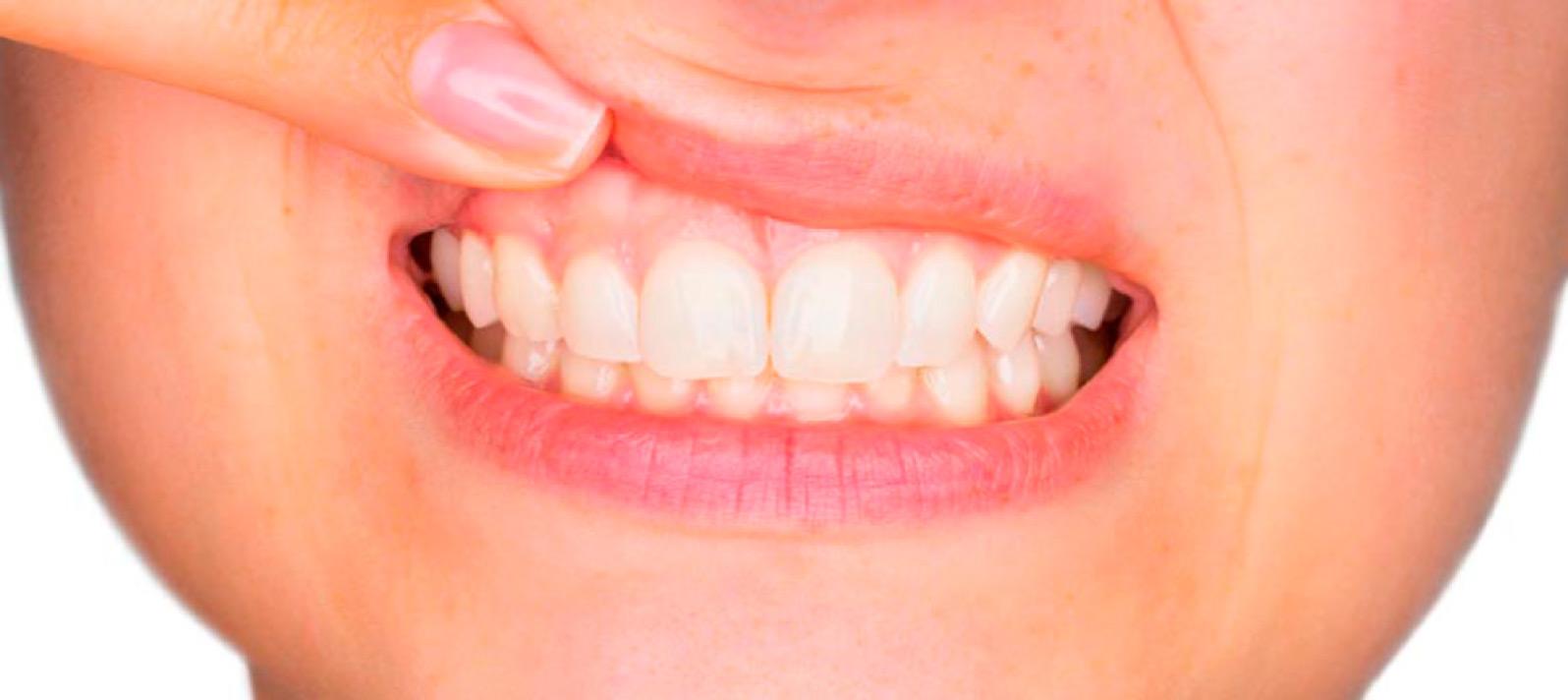 Evita que te sangren las encías y posibles enfermedades periodontales
