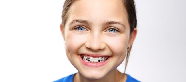 Ortodoncia interceptiva: problemas y soluciones para una mordida imperfecta