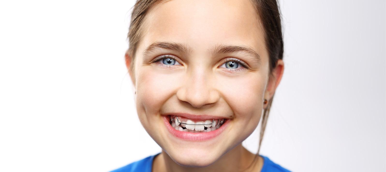 La utilización de ortodoncia interceptiva para acabar con los problemas de mordida imperfecta