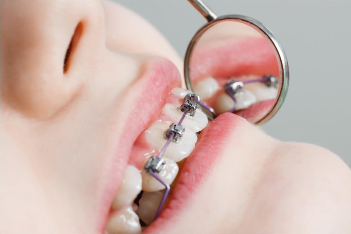 La ortodoncia es la mejor solución para una mala mordida