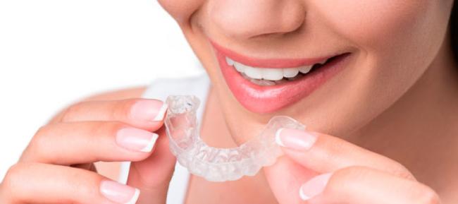 5 consejos importantes si vas a usar alineadores dentales