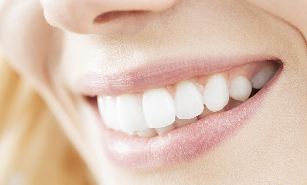 Sonrisa perfecta gracias a las carillas dentales