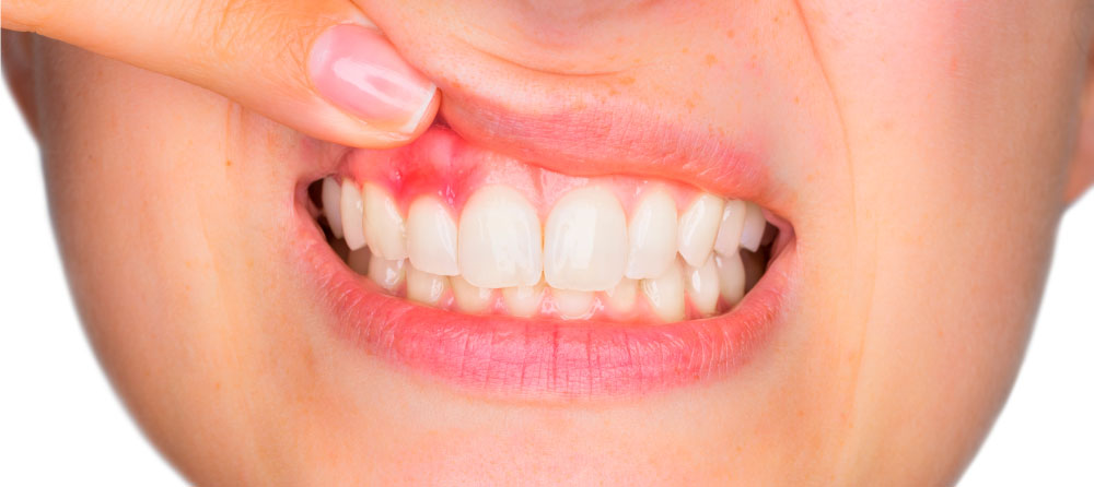 Acude a Dental Roca en Elche con los mejores especialistas para curar las encías inflamadas