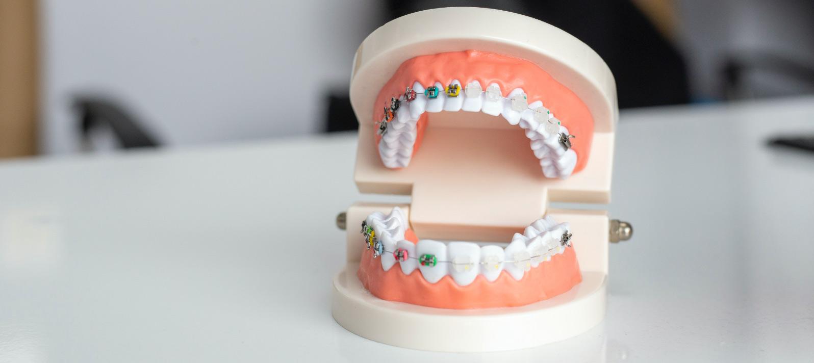 La ortodoncia con brackets permite conseguir una sonrisa bonita y equilibrada