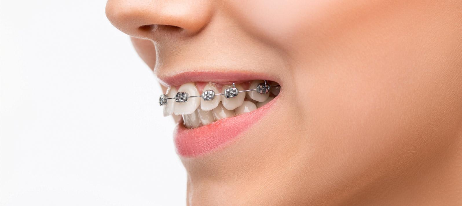 Los brackets sirven para corregir la malposición de los dientes