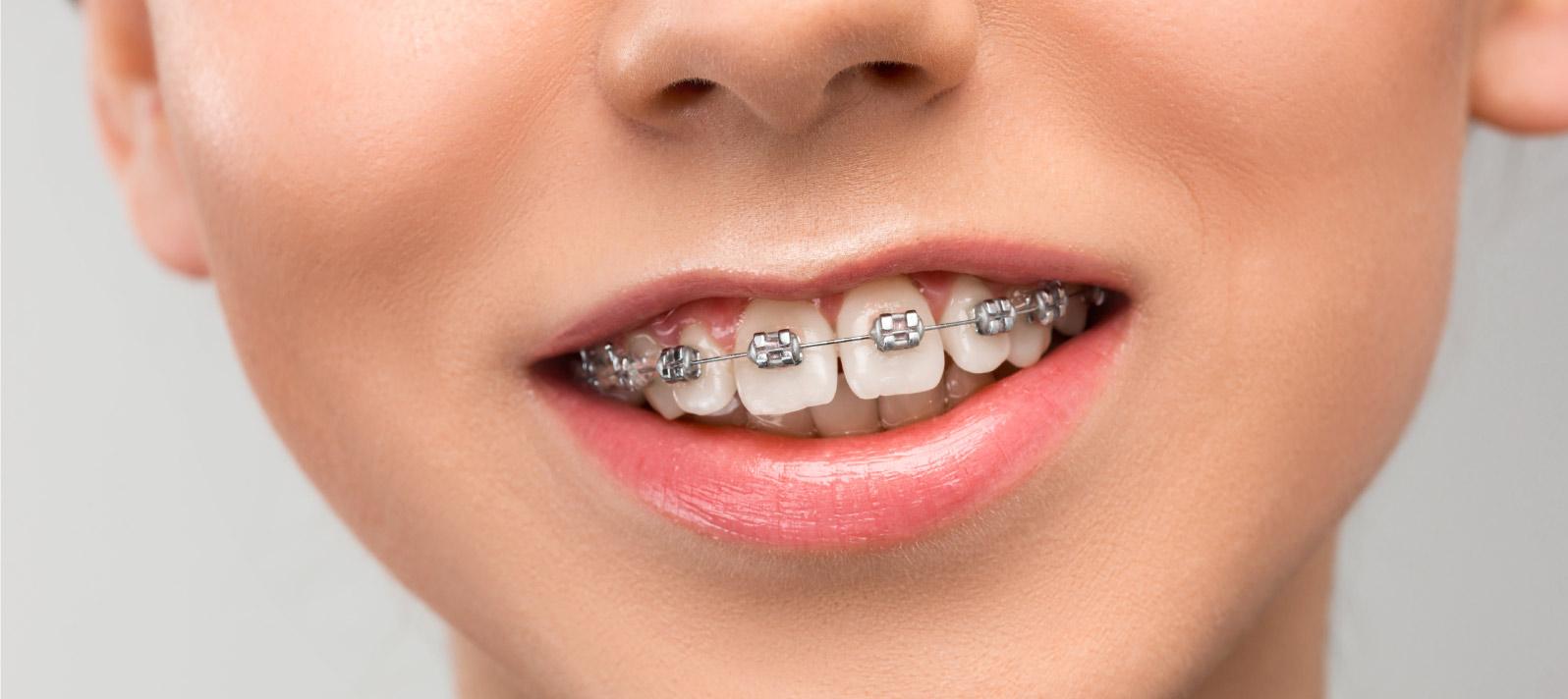 Servicio de ortodoncia en Dental Roca Elche
