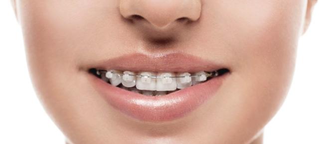 ¿Importa la edad en los tratamientos de ortodoncia?