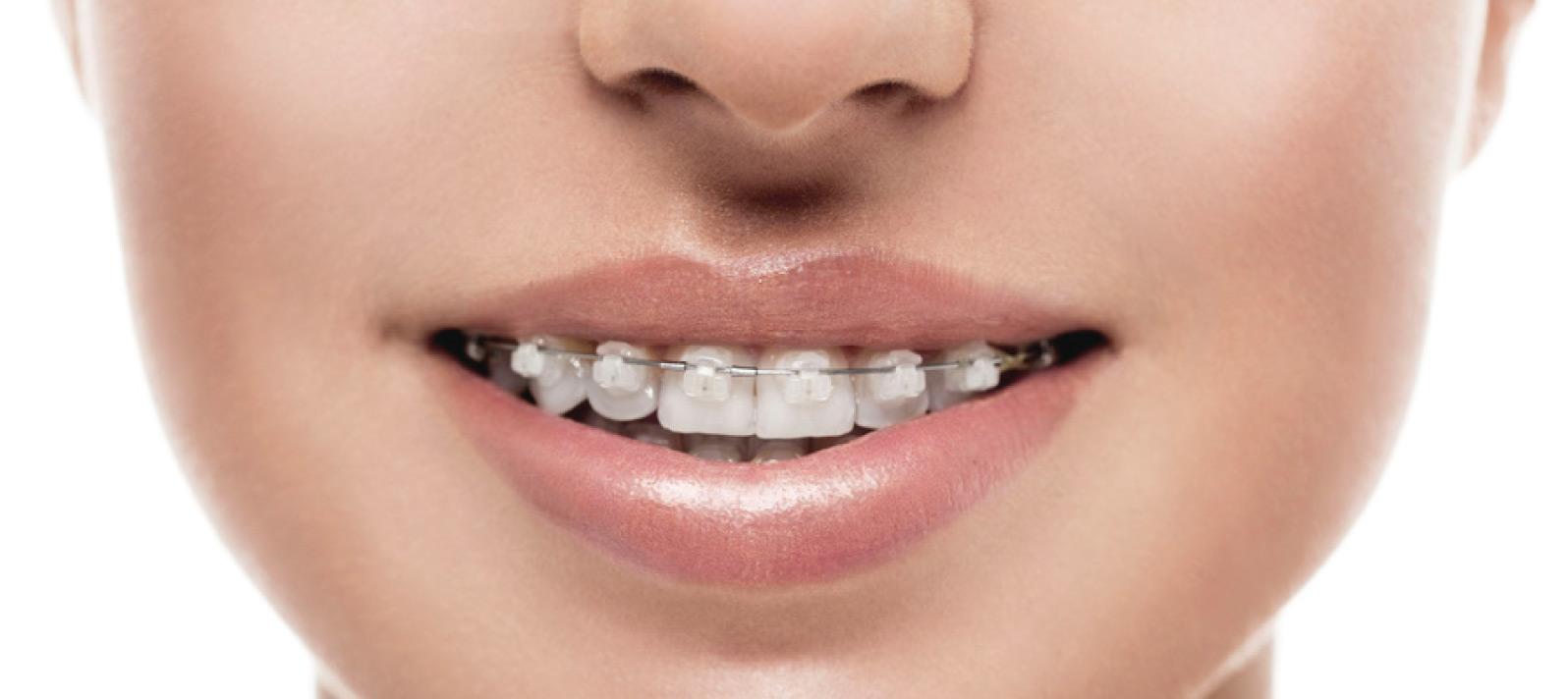 La edad en los tratamientos de ortodoncia