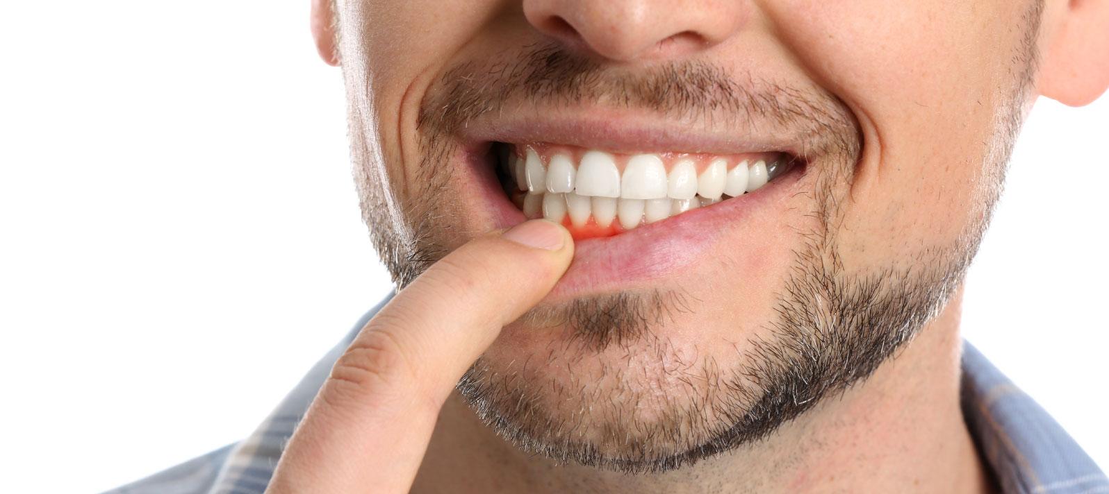 Tratamientos para acabar con la inflamación de encías