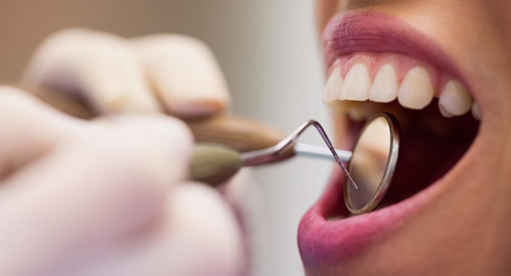 La importancia de cuidar las encías y extremar la higiene dental