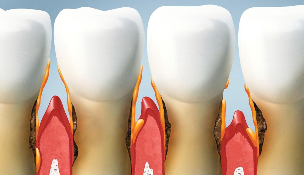 En Dental Roca cuidamos de las encías de nuestros pacientes